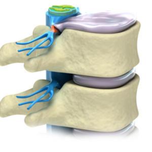 При движении усиливаются боли в спине и животе
