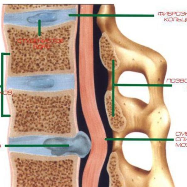 Симуляция болей в спины